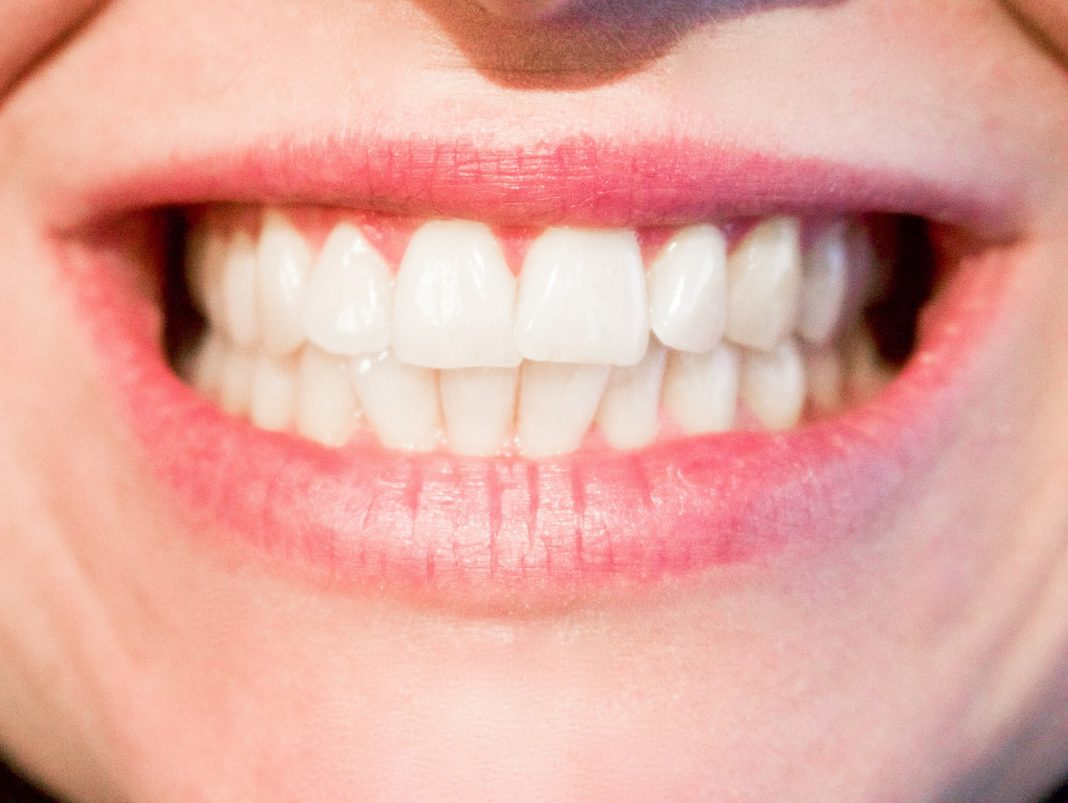 functionalitatea fatetelor dentare