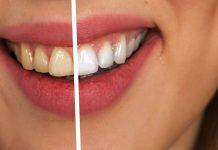 clinica dentara Elveto Dent